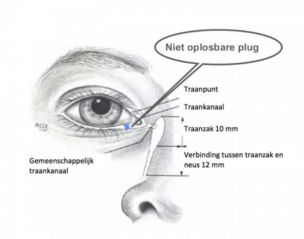 oplossing tranende ogen niet oplosbare ultra plug