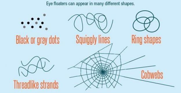 verschillende eye floaters